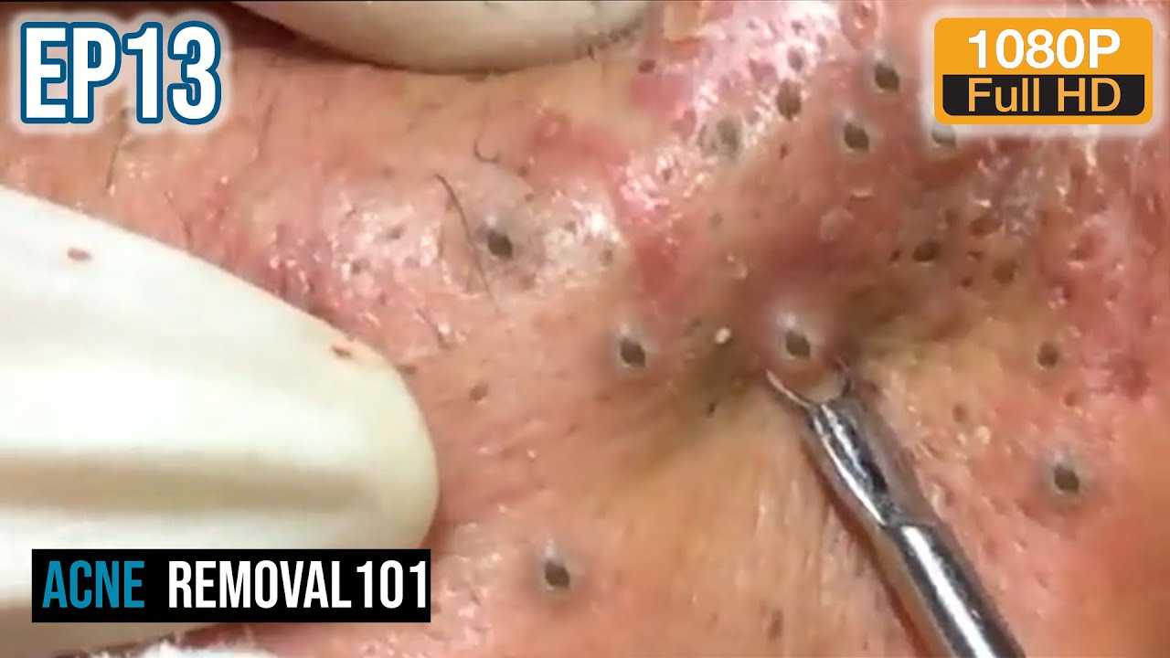 cystic acne extraction