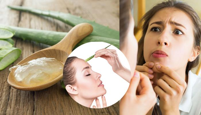Remedy For Pimples
